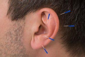Nada akupunktur